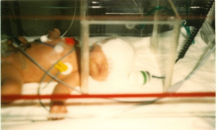 Jennifer as a tiny baby in an incubator, photo from the 1980's