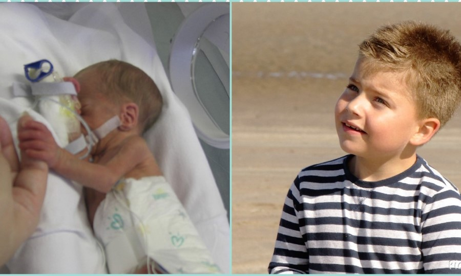 Two images - Luke as a premature baby in a hospital bed with tubes coming out him; and Luke as a healthy child.